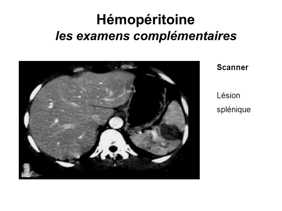 Hémopéritoine les examens complémentaires Scanner Lésion splénique