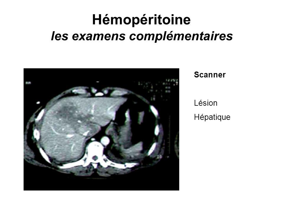 Hémopéritoine les examens complémentaires Scanner Lésion Hépatique