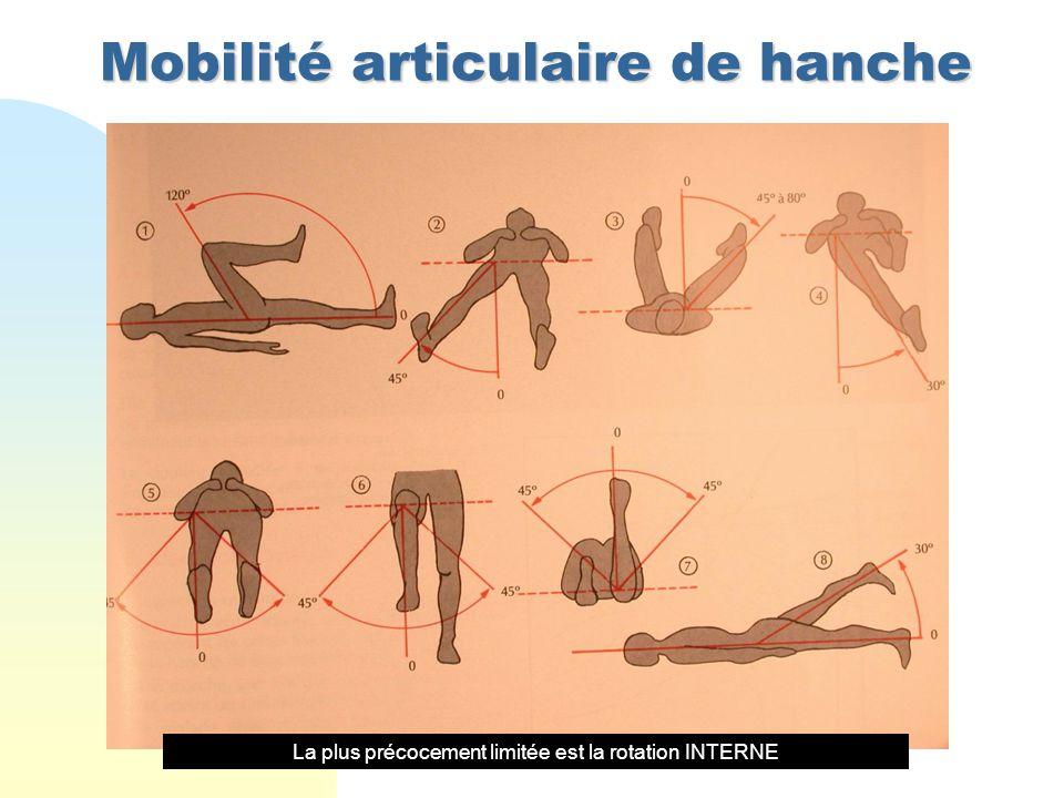Mobilité articulaire de hanche La plus précocement limitée est la rotation INTERNE
