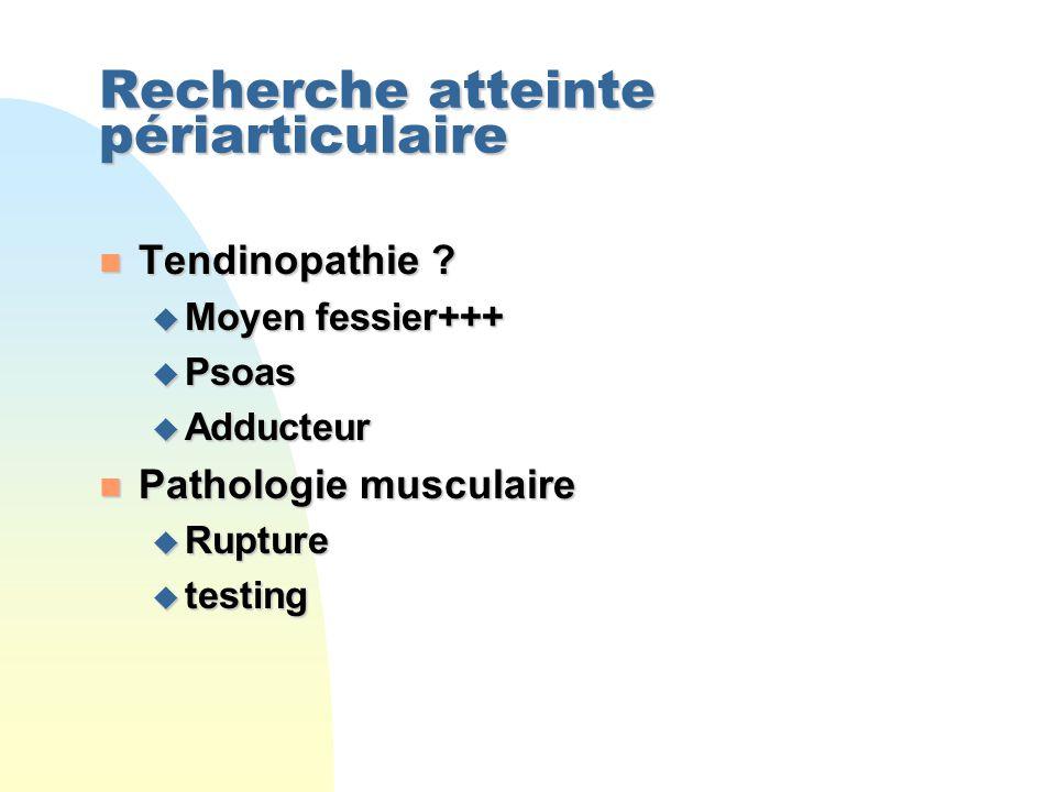 Recherche atteinte périarticulaire n Tendinopathie .