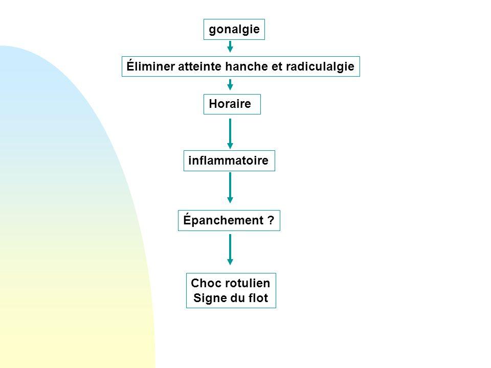 gonalgie inflammatoire Horaire Éliminer atteinte hanche et radiculalgie Choc rotulien Signe du flot Épanchement ?