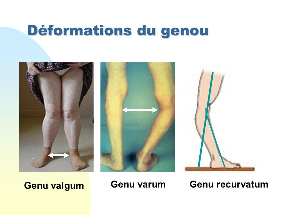 Déformations du genou Genu valgum Genu varumGenu recurvatum
