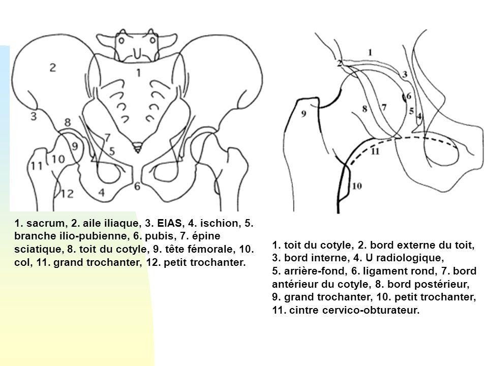 1.sacrum, 2. aile iliaque, 3. EIAS, 4. ischion, 5.