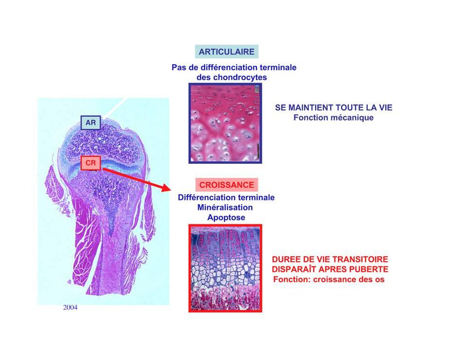 Anderson 2010 Best Pract Res Clin Rheumatol Vieillissement et arthrose Mechanic Cartilage calcification