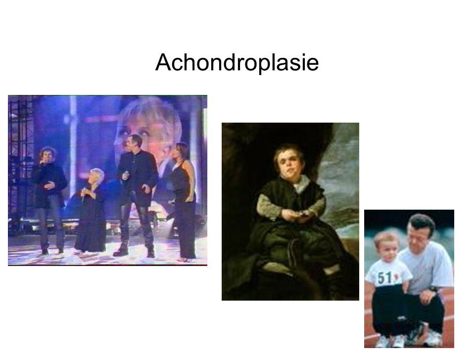 Achondroplasie