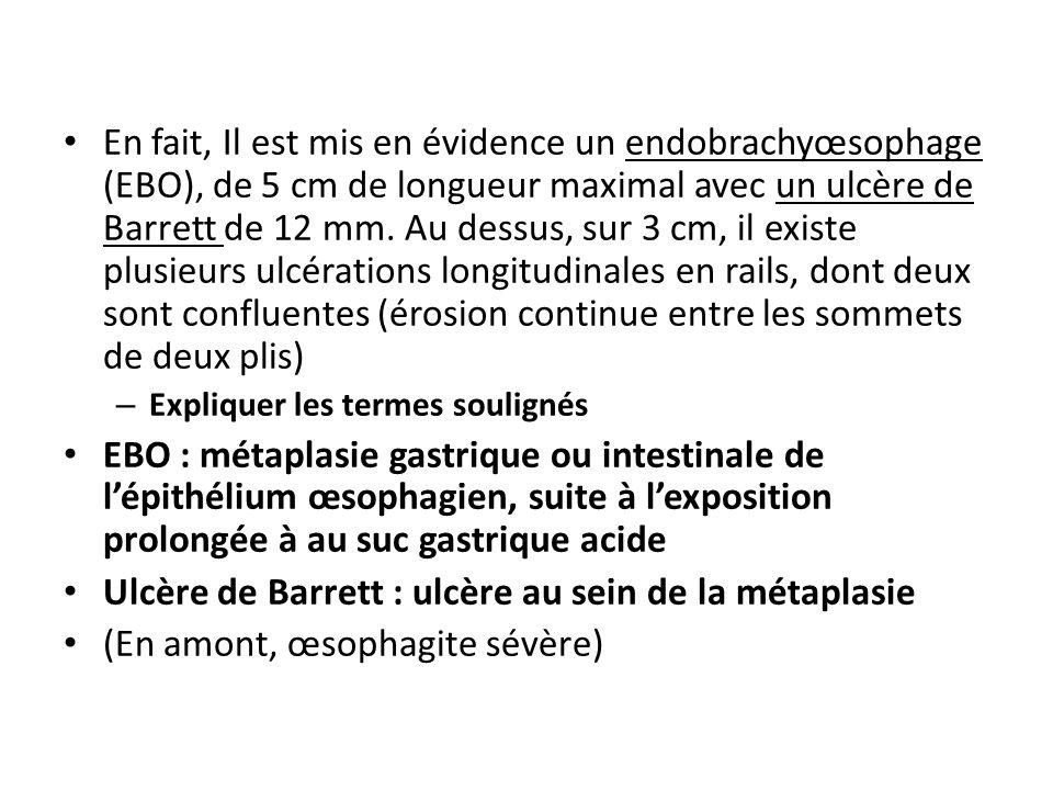 En fait, Il est mis en évidence un endobrachyœsophage (EBO), de 5 cm de longueur maximal avec un ulcère de Barrett de 12 mm.