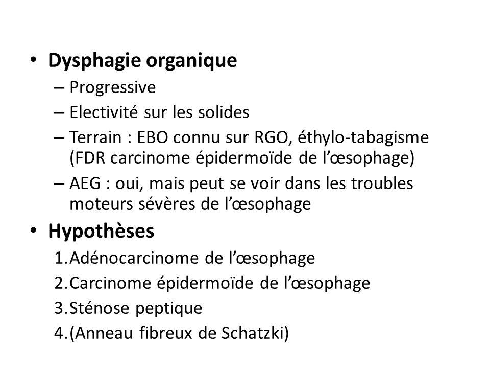 Dysphagie organique – Progressive – Electivité sur les solides – Terrain : EBO connu sur RGO, éthylo-tabagisme (FDR carcinome épidermoïde de lœsophage) – AEG : oui, mais peut se voir dans les troubles moteurs sévères de lœsophage Hypothèses 1.Adénocarcinome de lœsophage 2.Carcinome épidermoïde de lœsophage 3.Sténose peptique 4.(Anneau fibreux de Schatzki)