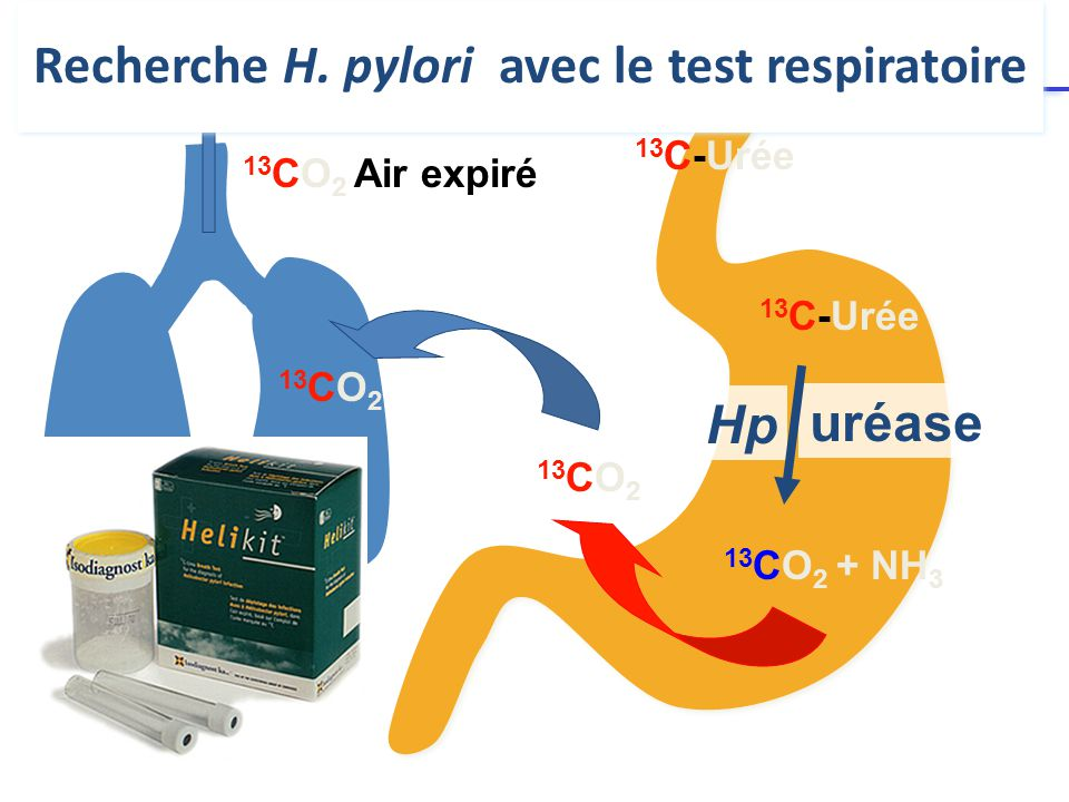 13 CO 2 + NH 3 13 CO 2 13 CO 2 Air expiré 13 C-Urée uréase Hp Recherche H.