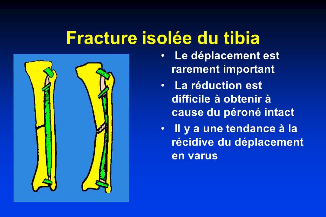 Fracture isolée du tibia Le déplacement est rarement important La réduction est difficile à obtenir à cause du péroné intact Il y a une tendance à la récidive du déplacement en varus