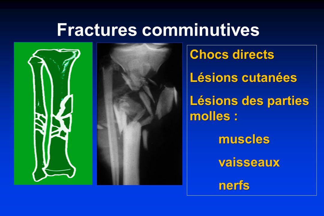 Fractures comminutives Chocs directs Lésions cutanées Lésions des parties molles : musclesvaisseauxnerfs