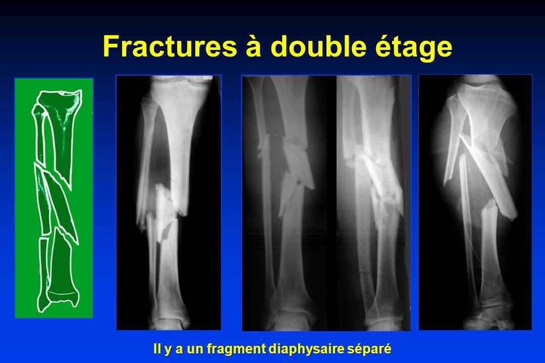 Fractures à double étage Il y a un fragment diaphysaire séparé