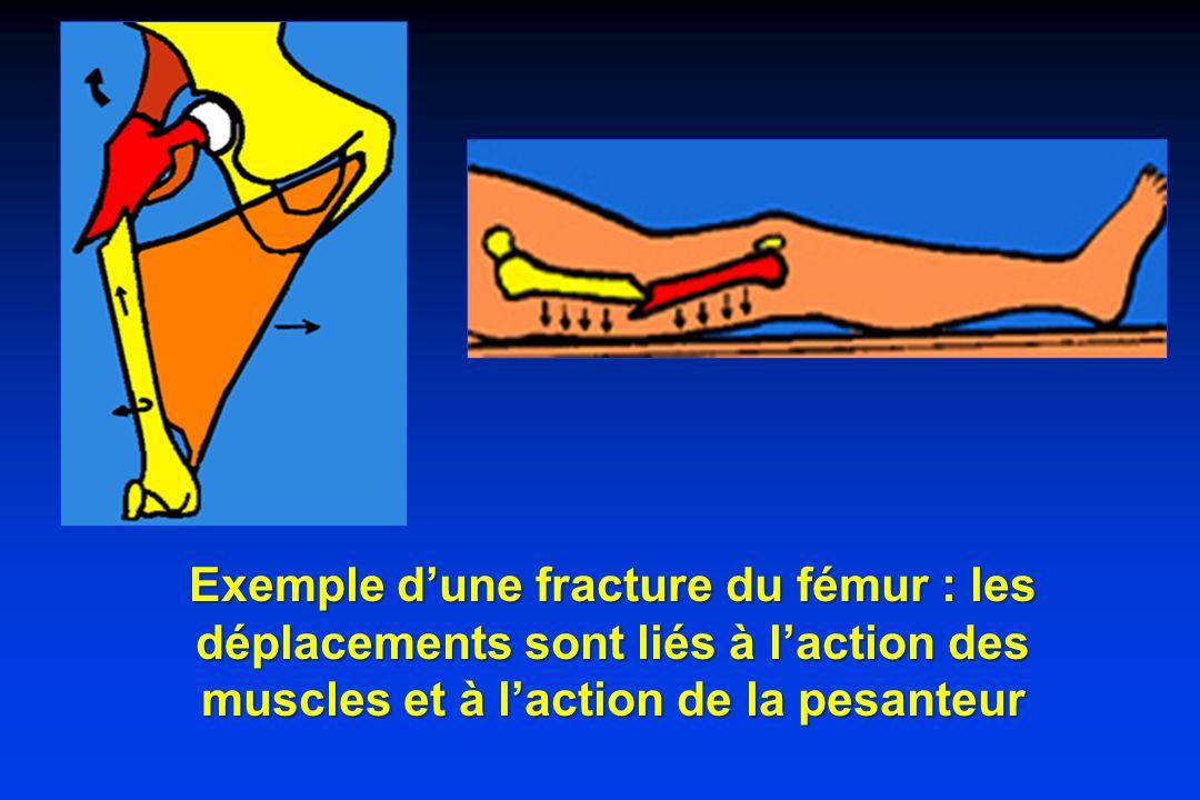 Exemple dune fracture du fémur : les déplacements sont liés à laction des muscles et à laction de la pesanteur