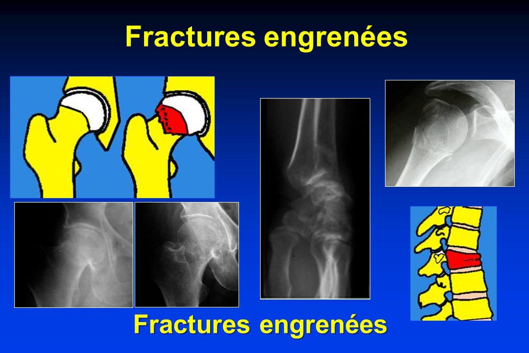 Fractures engrenées