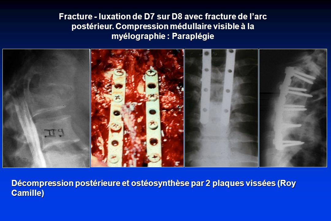 Fracture - luxation de D7 sur D8 avec fracture de larc postérieur.