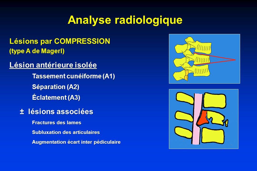Analyse radiologique Lésions par COMPRESSION (type A de Magerl) Lésion antérieure isolée Tassement cunéiforme (A1) Séparation (A2) Éclatement (A3) ± lésions associées ± lésions associées Fractures des lames Subluxation des articulaires Augmentation écart inter pédiculaire