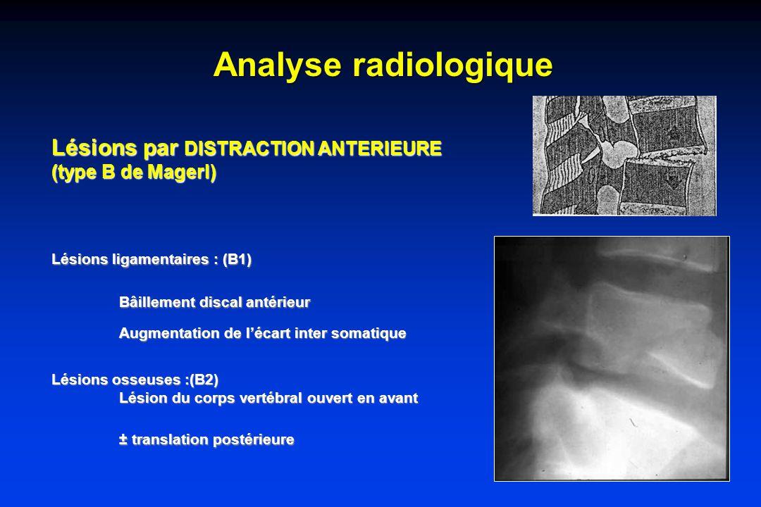 Analyse radiologique Lésions par DISTRACTION ANTERIEURE (type B de Magerl) Lésions ligamentaires : (B1) Bâillement discal antérieur Augmentation de lécart inter somatique Lésions osseuses :(B2) Lésion du corps vertébral ouvert en avant ± translation postérieure