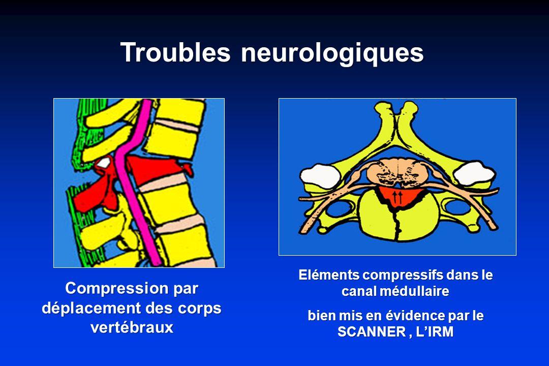 Troubles neurologiques Compression par déplacement des corps vertébraux Eléments compressifs dans le canal médullaire bien mis en évidence par le SCANNER, LIRM
