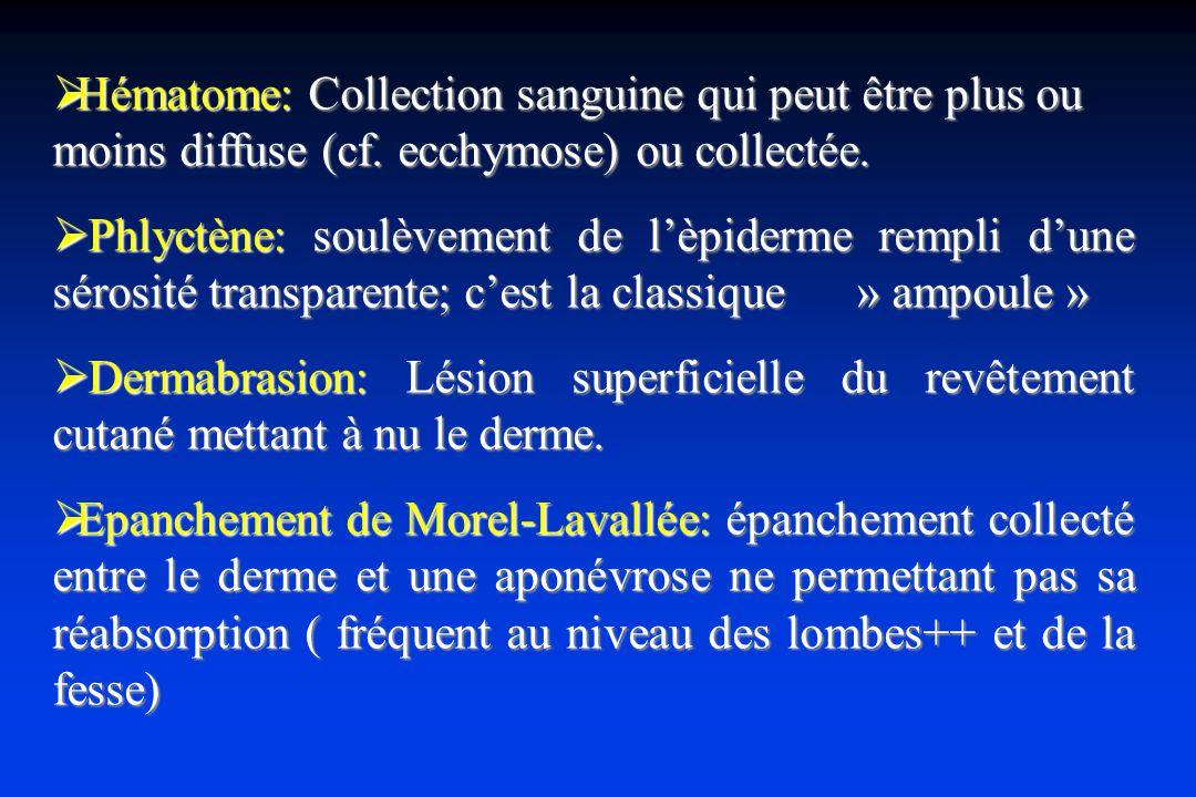 Hématome: Collection sanguine qui peut être plus ou moins diffuse (cf.