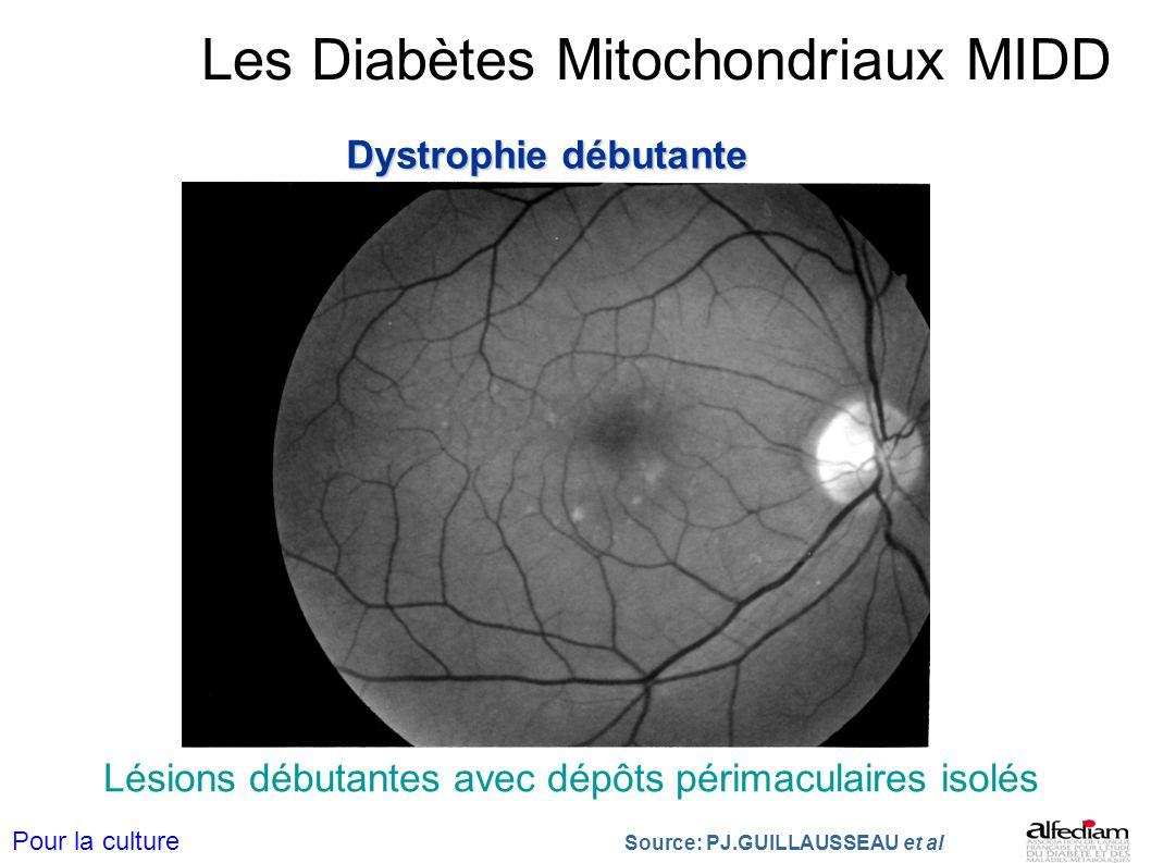 Les Diabètes Mitochondriaux MIDD Dystrophie débutante Lésions débutantes avec dépôts périmaculaires isolés Source: PJ.GUILLAUSSEAU et al Pour la cultu
