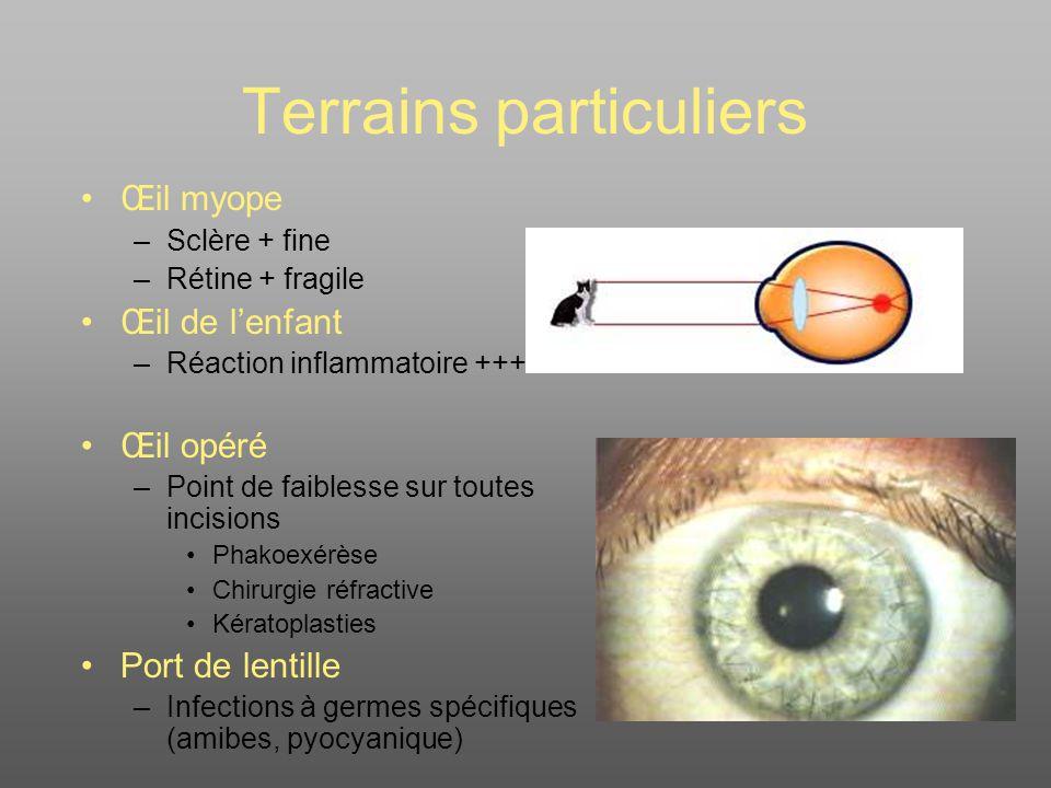 Urgences chirurgicales Plaies du globe oculaire Corps étrangers superficiels Contusions oculaires Plaies des annexes oculaires Brûlures oculo-palpébro- faciales Fractures de lorbite
