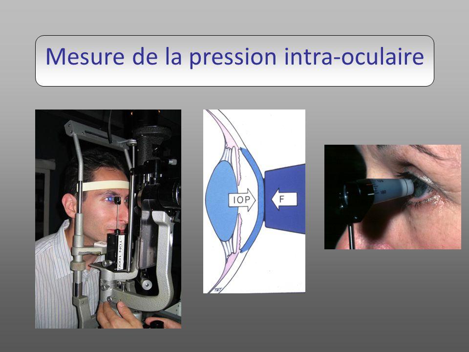 Examen de langle irido-cornéen