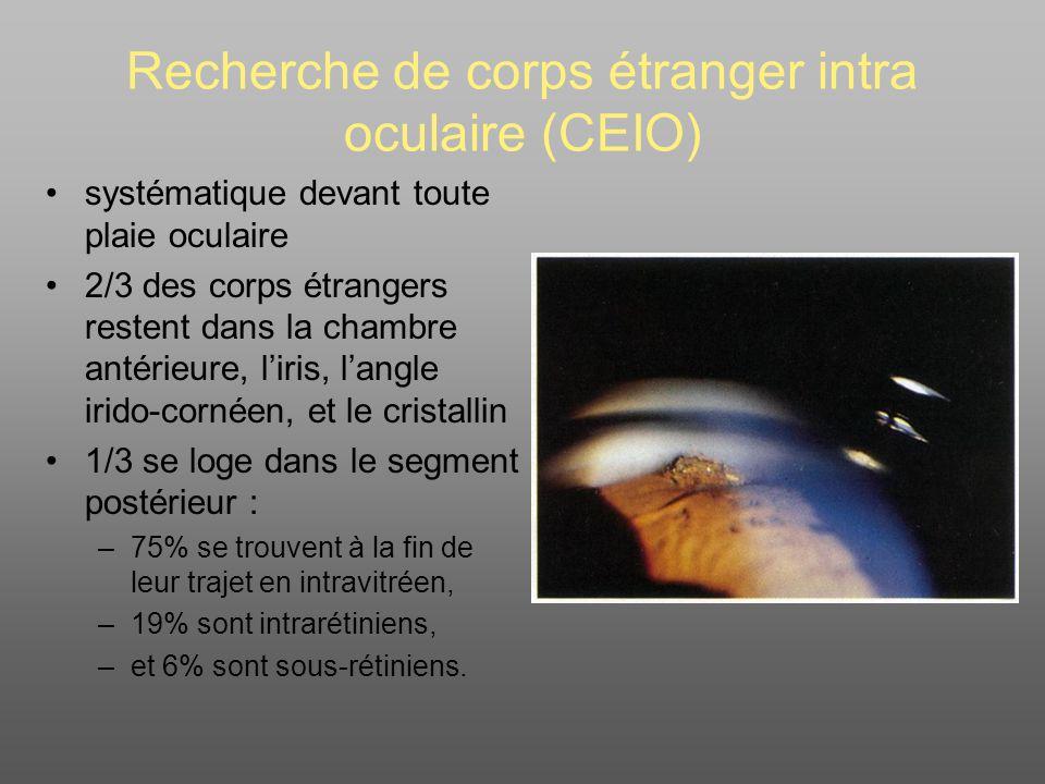Recherche de corps étranger intra oculaire (CEIO) systématique devant toute plaie oculaire 2/3 des corps étrangers restent dans la chambre antérieure, liris, langle irido-cornéen, et le cristallin 1/3 se loge dans le segment postérieur : –75% se trouvent à la fin de leur trajet en intravitréen, –19% sont intrarétiniens, –et 6% sont sous-rétiniens.