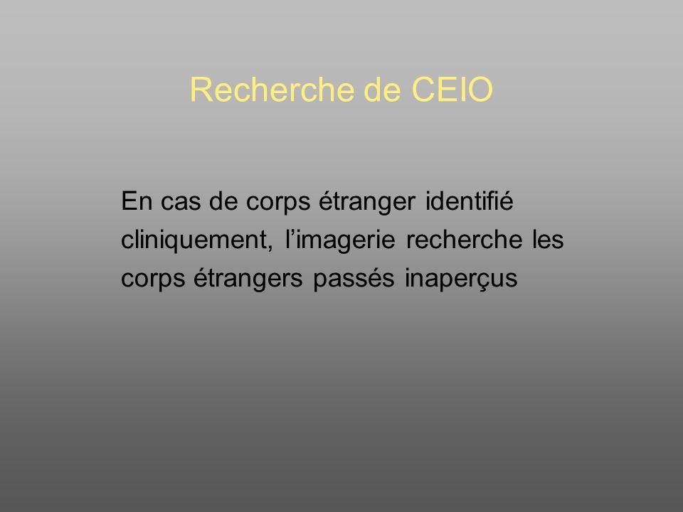 Recherche de CEIO En cas de corps étranger identifié cliniquement, limagerie recherche les corps étrangers passés inaperçus