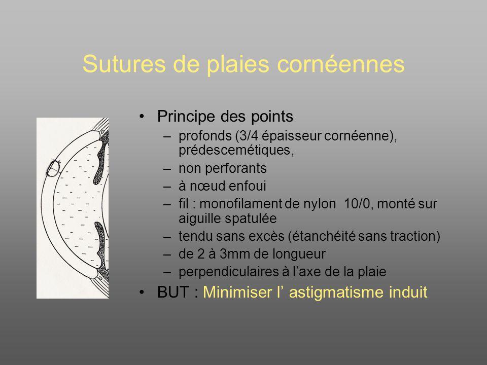 Sutures de plaies cornéennes Principe des points –profonds (3/4 épaisseur cornéenne), prédescemétiques, –non perforants –à nœud enfoui –fil : monofilament de nylon 10/0, monté sur aiguille spatulée –tendu sans excès (étanchéité sans traction) –de 2 à 3mm de longueur –perpendiculaires à laxe de la plaie BUT : Minimiser l astigmatisme induit