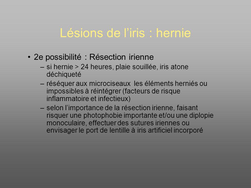 Lésions de liris : hernie 2e possibilité : Résection irienne –si hernie > 24 heures, plaie souillée, iris atone déchiqueté –réséquer aux microciseaux les éléments herniés ou impossibles à réintégrer (facteurs de risque inflammatoire et infectieux) –selon limportance de la résection irienne, faisant risquer une photophobie importante et/ou une diplopie monoculaire, effectuer des sutures iriennes ou envisager le port de lentille à iris artificiel incorporé