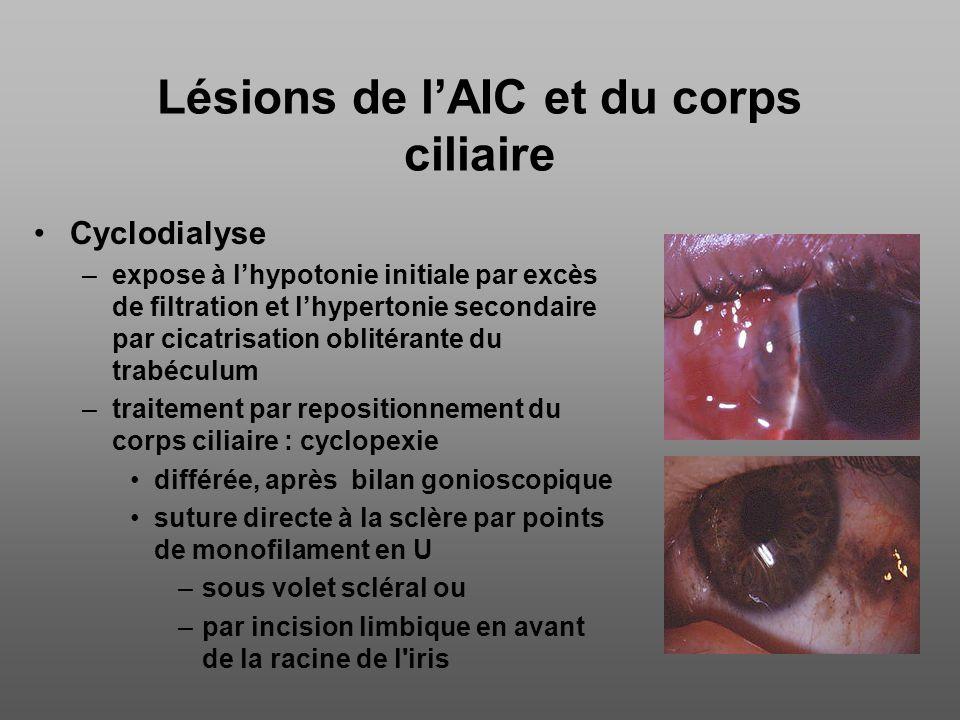 Lésions de lAIC et du corps ciliaire Blessures du corps ciliaire –réintégration soigneuse, puis suture de la plaie sclérale, en présence d une hernie de petite taille.