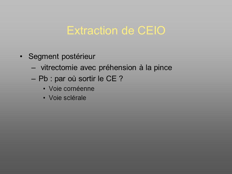 Extraction de CEIO Segment postérieur – vitrectomie avec préhension à la pince –Pb : par où sortir le CE .