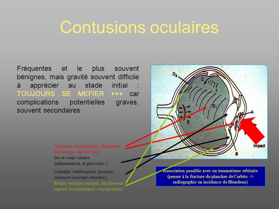 Contusions oculaires Fréquentes et le plus souvent bénignes, mais gravité souvent difficile à apprécier au stade initial : TOUJOURS SE MEFIER +++ car complications potentielles graves, souvent secondaires Association possible avec un traumatisme orbitaire (penser à la fracture du plancher de lorbite -> radiographie en incidence de Blondeau) Vaisseaux->hémorragies (hyphéma, hémorragie dans le vitré) Iris et corps ciliaire (inflammation et glaucome ) Cristallin (subluxation, luxation, cataracte (souvent retardée)) Rétine (œdème contusif, décollement, rupture de membranes sous-jacentes)