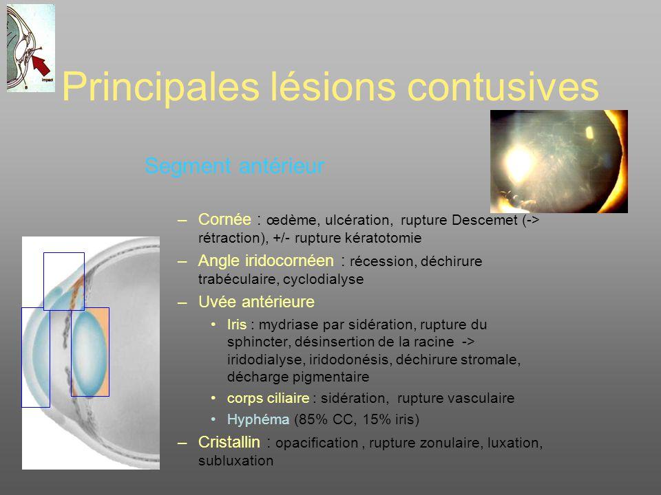 Principales lésions contusives Segment antérieur –Cornée : œdème, ulcération, rupture Descemet (-> rétraction), +/- rupture kératotomie –Angle iridoco