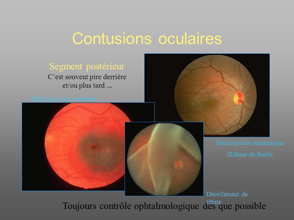 Contusions oculaires Toujours contrôle ophtalmologique dès que possible Segment postérieur Cest souvent pire derrière et/ou plus tard...