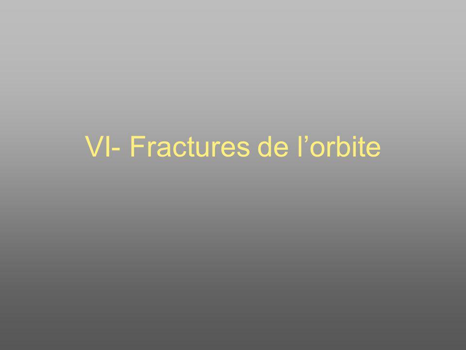 Fracture de lorbite La situation de lorbite explique lintrication possible à son niveau de pathologies ORL, neuro-chirurgicales, maxillo-faciales et ophtalmologiques.