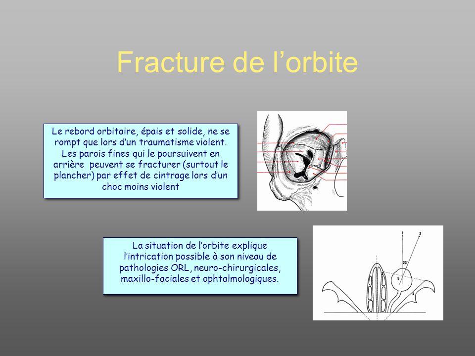 Fracture de l orbite Œdème et hématome orbito- palpébral souvent au premier plan (laisser « dégonfler » sous Sterdex* x2/j) Une seule vraie urgence OPH : la « fracture en trappe » : diplopie douloureuse dans le regard en haut (incarcération du corps musculaire du muscle droit inférieur) Réaliser toujours un bilan cranio- facial (au moins Rx Blondeau) : les dangers les plus importants sont ailleurs (base du crane) La plus fréquente : le plancher Un signe important : anesthésie ou hypoesthésie infra-orbitaire (joue + 2 incisives)