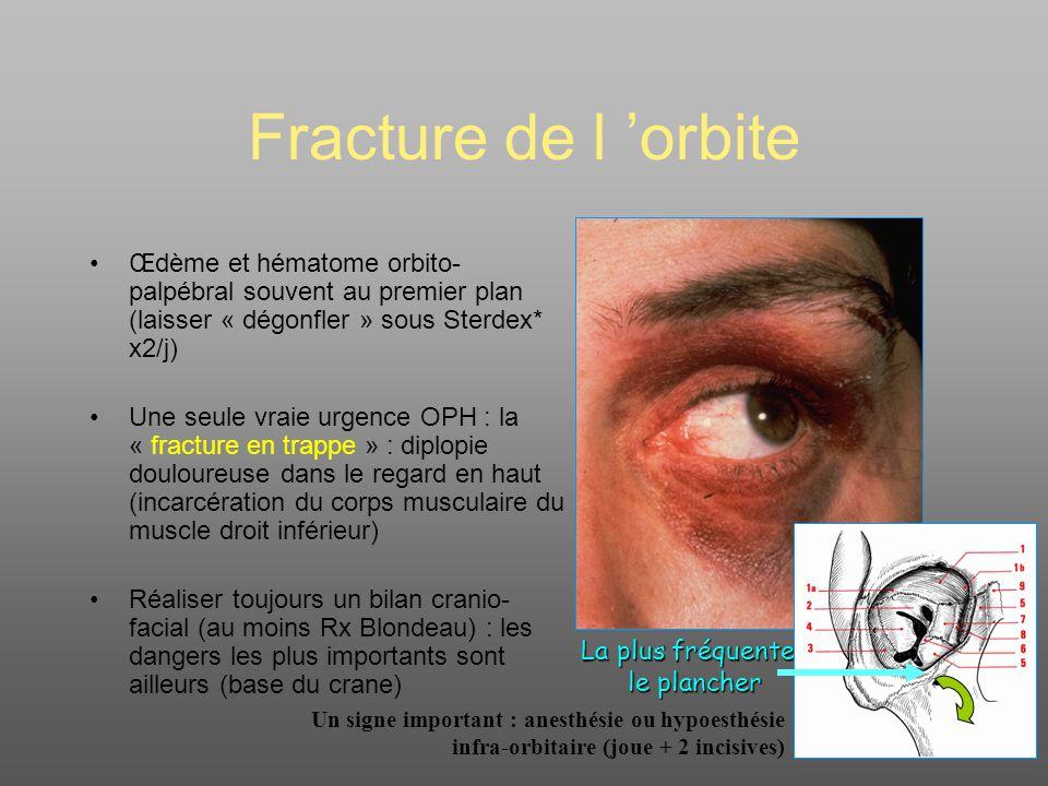 Conclusion Traumatismes oculaires = potentiellement graves Méconnaissance de lésions sévères ou dangereuses si examen non rigoureux Orienter vers un ophtalmologiste pour bilan et prise en charge