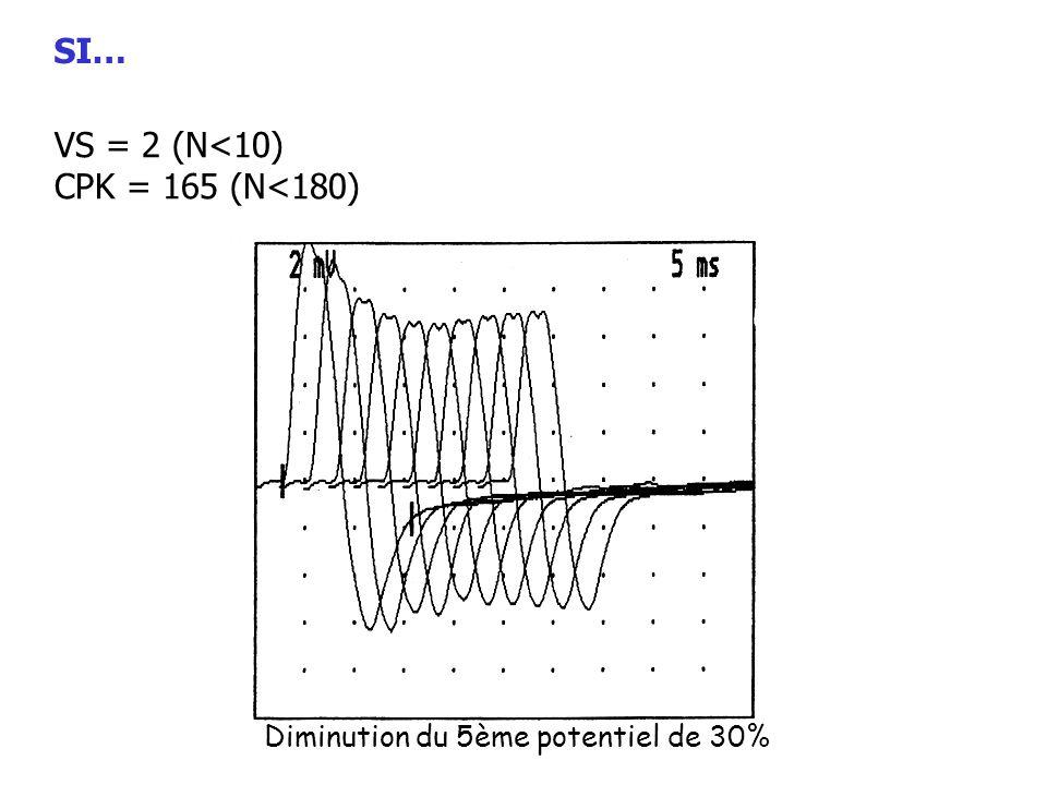 VS = 2 (N<10) CPK = 165 (N<180) Diminution du 5ème potentiel de 30% SI…