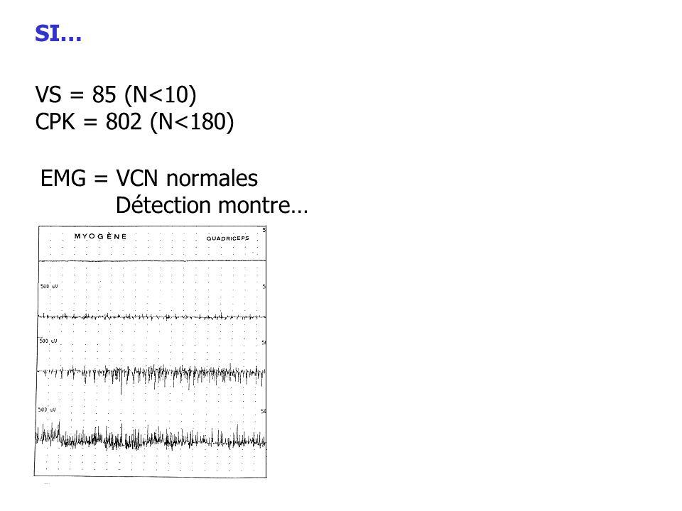 VS = 85 (N<10) CPK = 802 (N<180) EMG = VCN normales Détection montre…