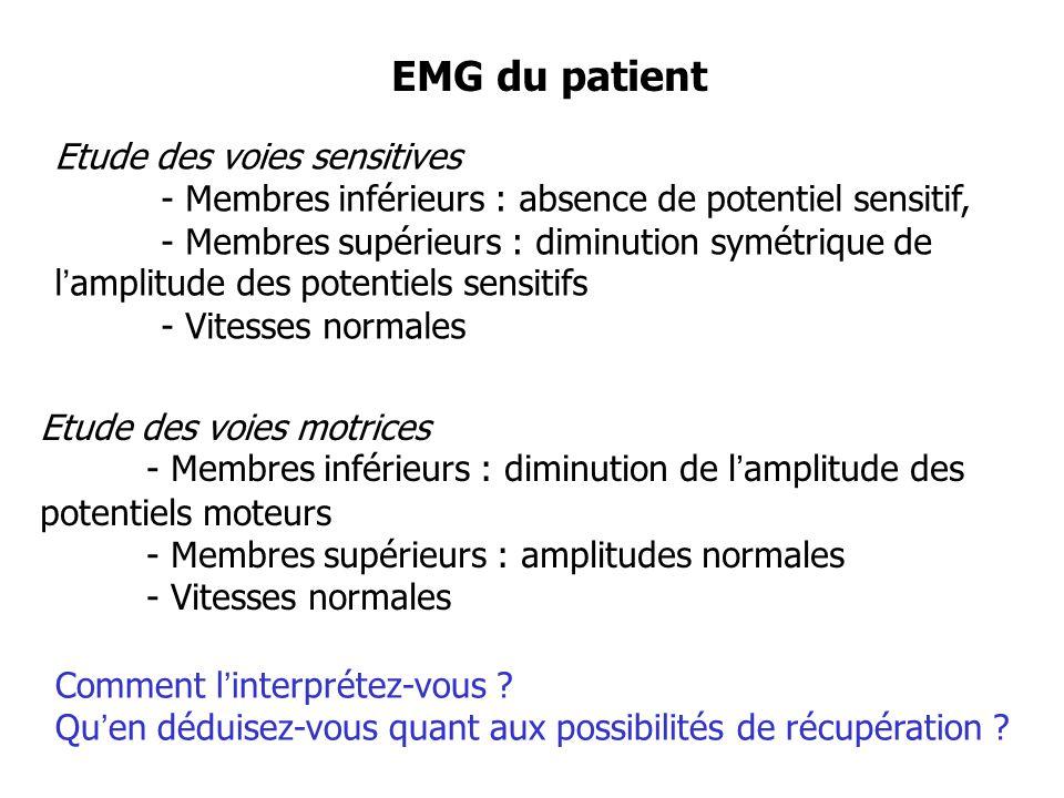 EMG du patient Comment linterprétez-vous ? Quen déduisez-vous quant aux possibilités de récupération ? Etude des voies sensitives - Membres inférieurs