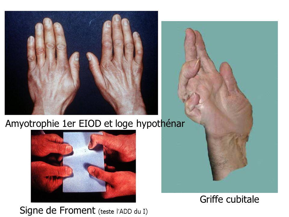 Griffe cubitale Signe de Froment (teste lADD du I) Amyotrophie 1er EIOD et loge hypothénar