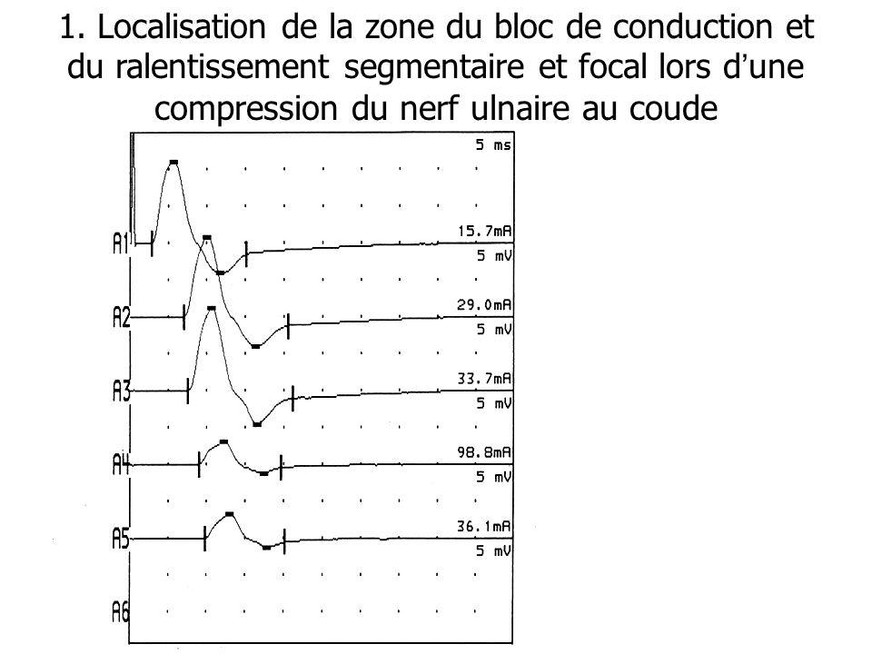 1. Localisation de la zone du bloc de conduction et du ralentissement segmentaire et focal lors dune compression du nerf ulnaire au coude