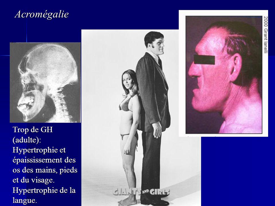 Trop de GH (adulte): Hypertrophie et épaississement des os des mains, pieds et du visage. Hypertrophie de la langue. Acromégalie