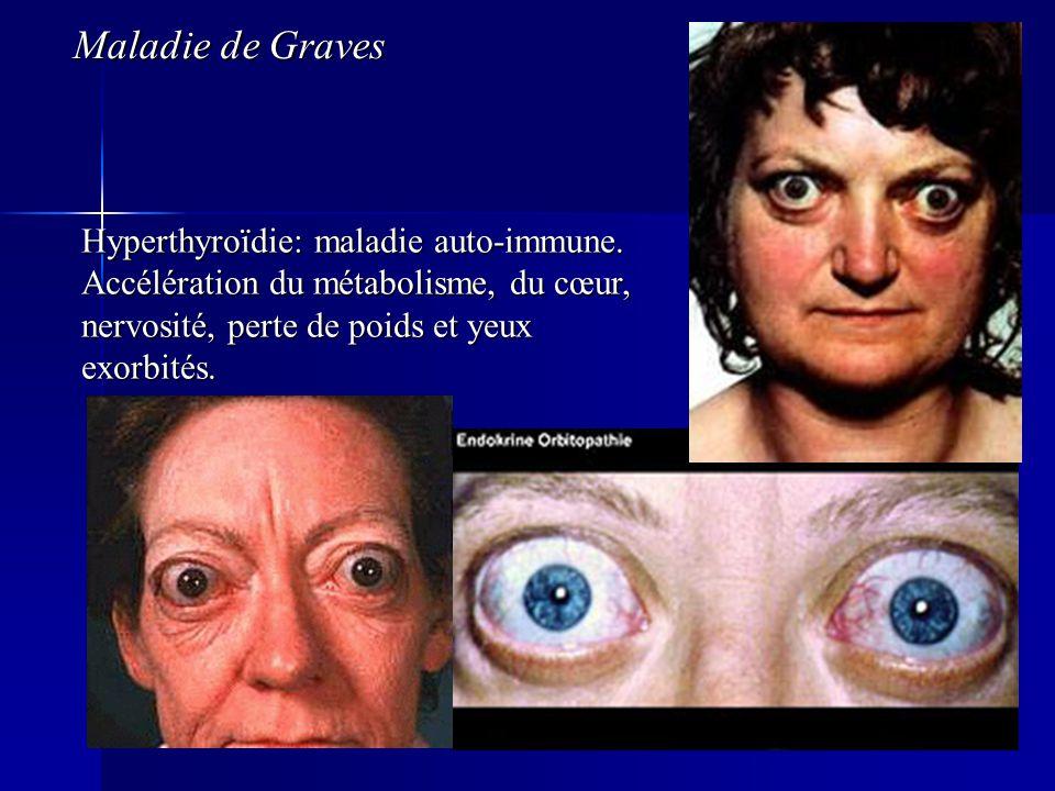Hyperthyroïdie: maladie auto-immune. Accélération du métabolisme, du cœur, nervosité, perte de poids et yeux exorbités. Maladie de Graves