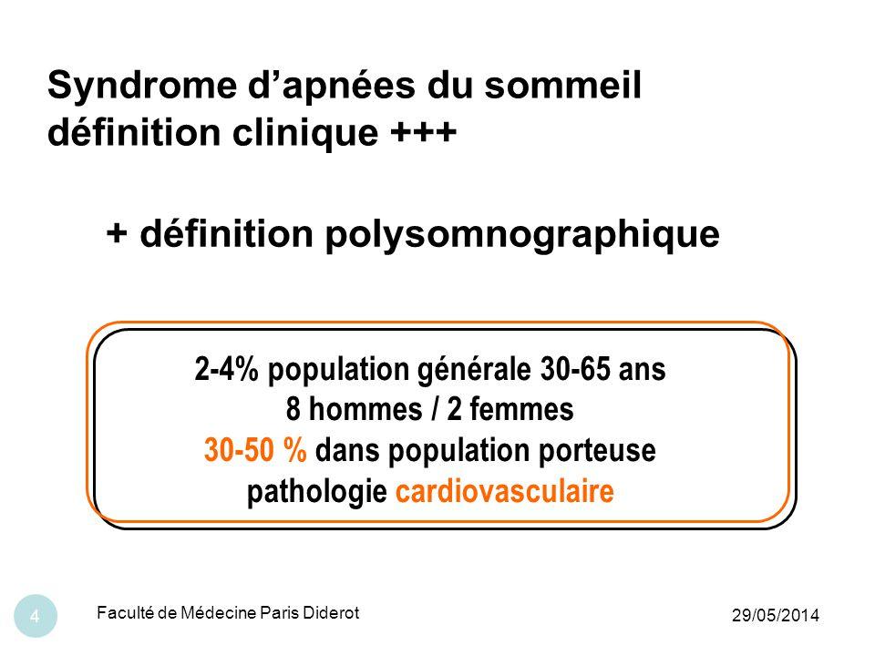 29/05/2014 Faculté de Médecine Paris Diderot 25 Pas de ronflements ….