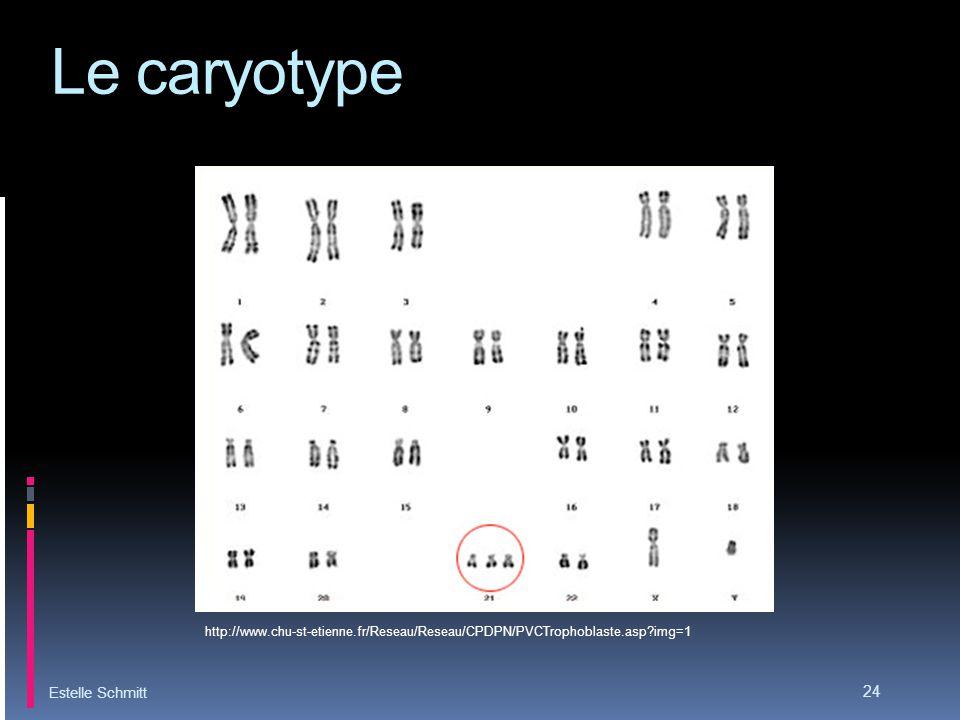 Le caryotype Estelle Schmitt 24 http://www.chu-st-etienne.fr/Reseau/Reseau/CPDPN/PVCTrophoblaste.asp?img=1