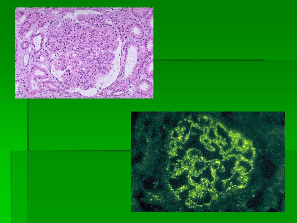 Mycophénolate mofétil (données encore limitées) *néphrose corticodépendante ( la durée de la rémission) dose de 1,2 g/m 2 dose de 1,2 g/m 2 la majorité des patients la majorité des patients rechute après larrêt du traitement.