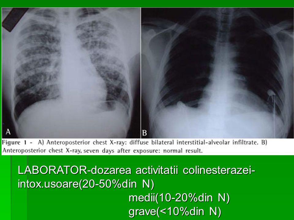 LABORATOR-dozarea activitatii colinesterazei- intox.usoare(20-50%din N) medii(10-20%din N) medii(10-20%din N) grave(<10%din N) grave(<10%din N)