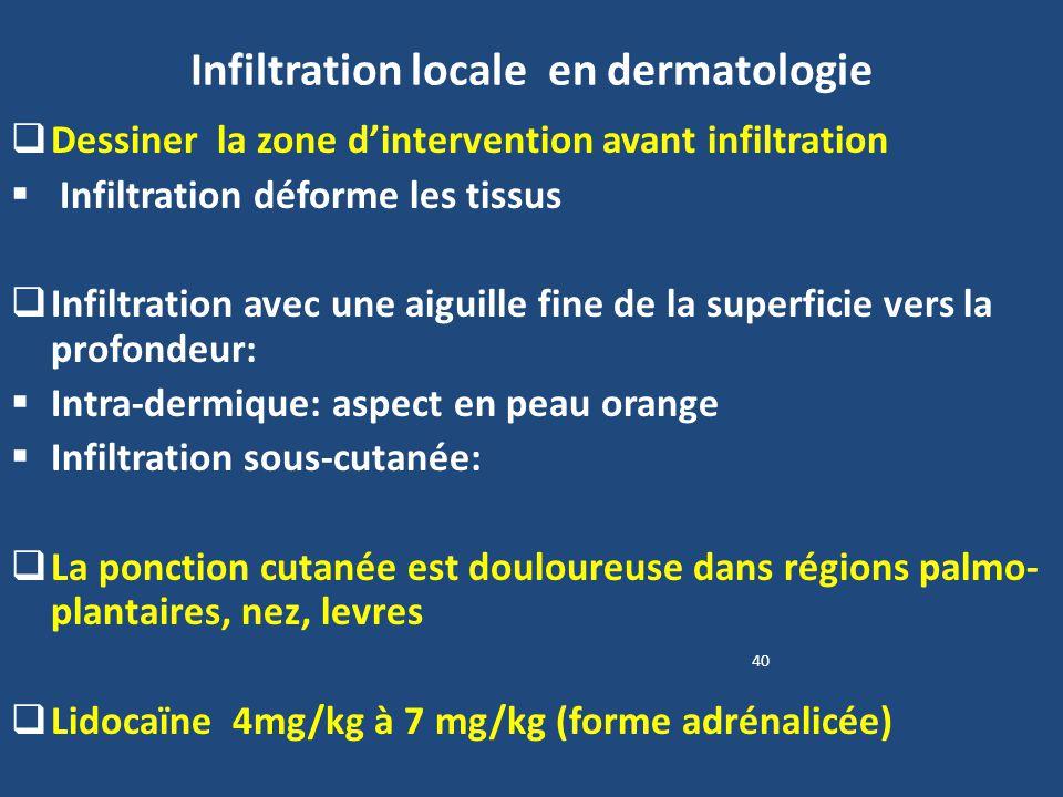 Infiltration locale en dermatologie Dessiner la zone dintervention avant infiltration Infiltration déforme les tissus Infiltration avec une aiguille f