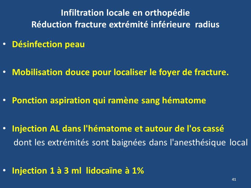 Infiltration locale en orthopédie Réduction fracture extrémité inférieure radius Désinfection peau Mobilisation douce pour localiser le foyer de fract
